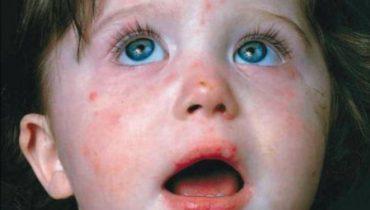Maros megyében több mint 190 kanyarós megbetegedést jegyeztek