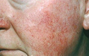 A bőrbetegség, amiről alig hallottunk, pedig sok embert érint!