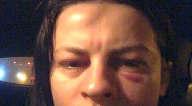 Eltűnt egy volt tanácsos felesége, aki korábban összevert arccal közölt magáról fotót