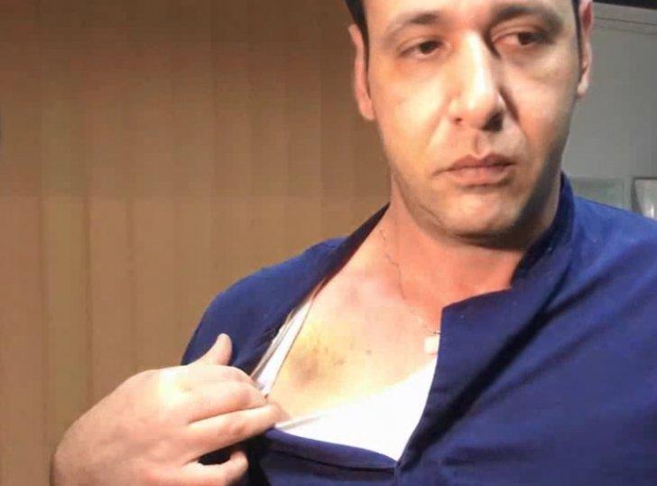 Brutálisan megverték az orvost, amikor az nem talált az egyiküknél semmilyen betegséget