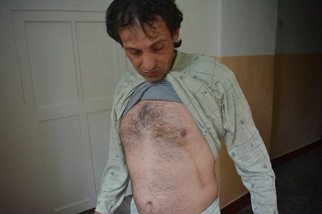 Kutyasétáltatóra támadt a medve Tusnádfürdőn